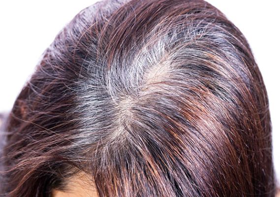 "How to fight premature ""gray hair"", hair health"
