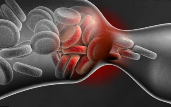 What is thrombosis? Where does it cause and how to prevent it?